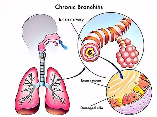 Obat Bronchitis Resep Herbal HNI HPAI