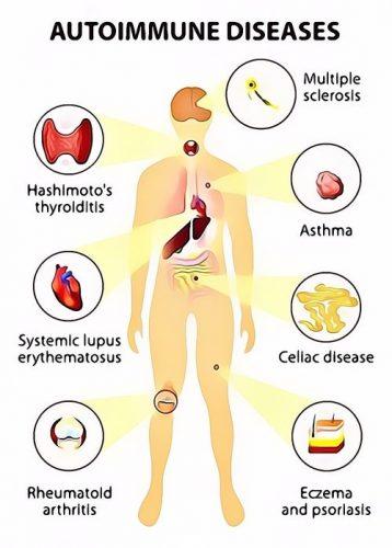 Obat Autoimun Resep Herbal HNI HPAI