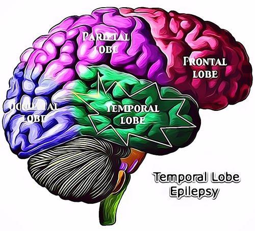 Obat Epilepsi Resep Herbal HNI HPAI